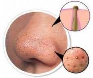 komedo propolis untuk jerawat obat jerawat www.propolis4life.wordpress.com 082218120457