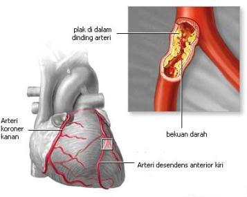 penyebab serangan jantung manfaat propolis khasiat propolis