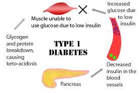 diabetes tipe 1, obat diabetes, diabetes mellitus, obat herbal diabetes, cara menyembuhkan diabetes, cara mengobati diabetes, obat diabetes yang bagus