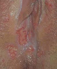 manfaat propolis untuk penyakit kelamin, obat penyakit kelamin, obat gonorhea, obat kutil kelamin, obat sifilis, obat kencing nanah, gejala kencing nanah, gejala sifilis, goodfit nano propolis, green brazilian propolis, manfaat propolis, khasiat propolis, obat propolis, merk propolis, propolis terbaik, propolis brazilian, jenis penyakit kelamin, kencing nanah, gonorhea, gejala herpes kelamin