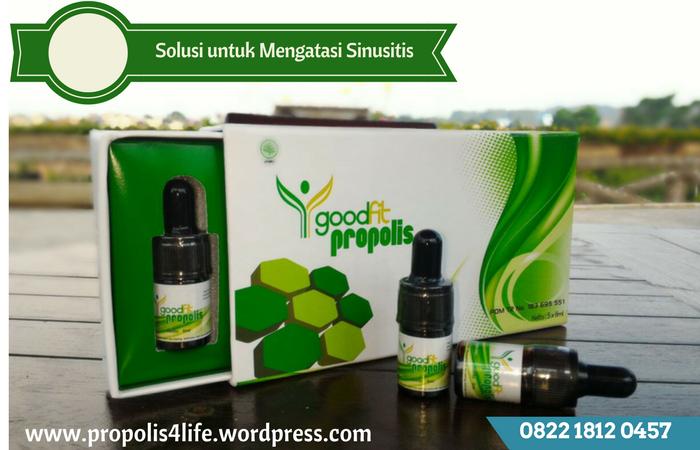 obat sinusitis, obat radang sinus, obat sinusitis ampuh