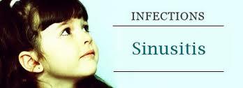 penyebab sinusitis, gejala sinusitis, sinusitis, obat sinusitis