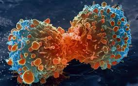 propolis untuk kanker, manfaat propolis untuk kanker, obat kanker, obat herbal untuk kanker, pengobatan alternatif kanker, gejala kanker, apa itu kanker, jenis-jenis kanker, pengobatan kanker dengan propolis, propolis bagus untuk kanker, obat kanker paru-paru, obat kanker darah, obat kanker serviks, obat kanker payudara, obat kanker hati, obat kanker mulut, obat tumor