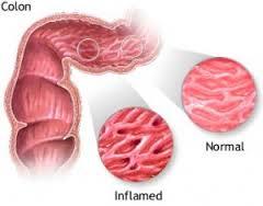 gejala kolitis, penyebab kolitis, obat kolitis