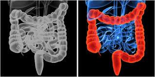 penyebab radang usus, radang usus, gejala radang usus, obat radang usus