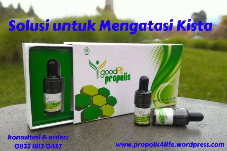 obat kista, propolis untuk kista, obat kista herbal
