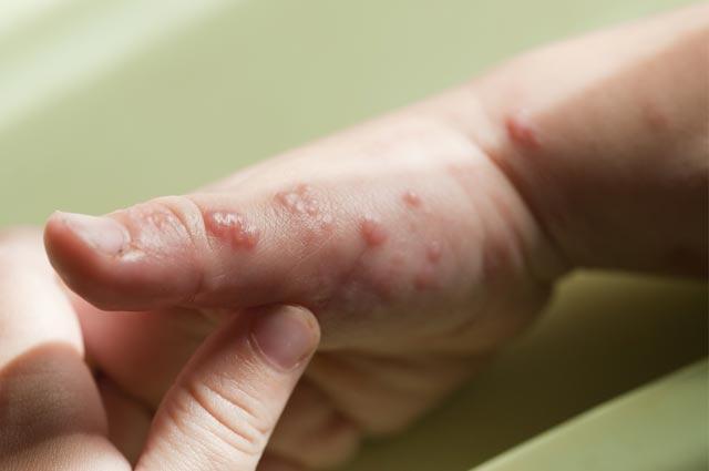 alergi pada bayi, penyebab dan gejalanya