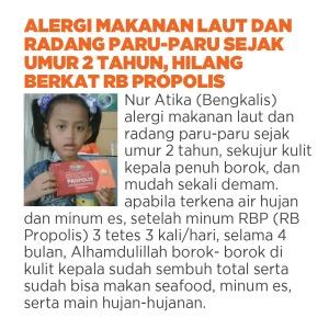 obat alergi untuk anak, cara mengobati alergi pada anak, obat alergi pada anak
