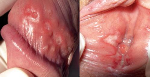 herpes kelamin