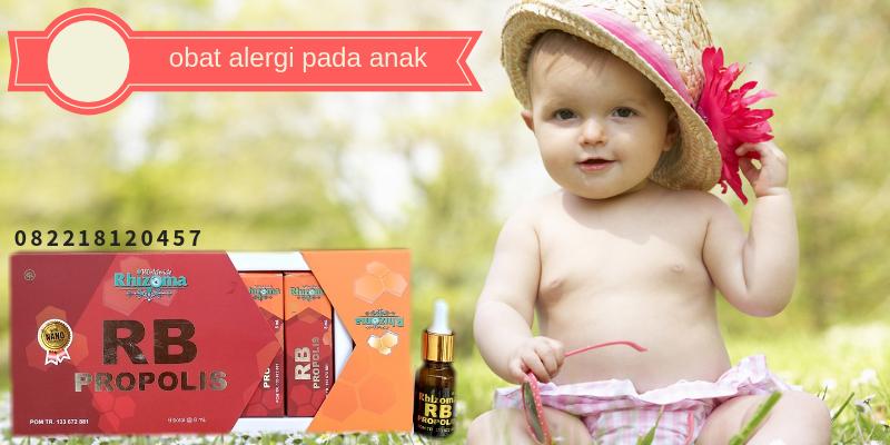 obat alergi pada anak
