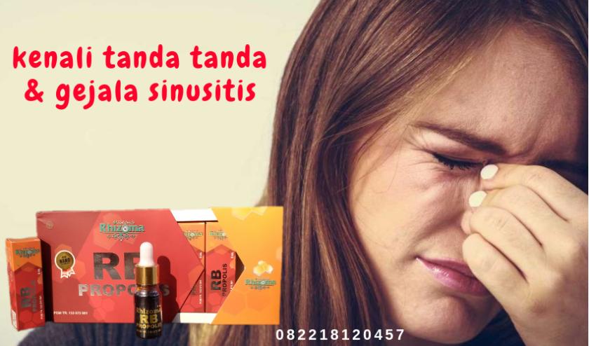 tanda tanda sinusitis, gejala sinusitis, ciri ciri sinusitis
